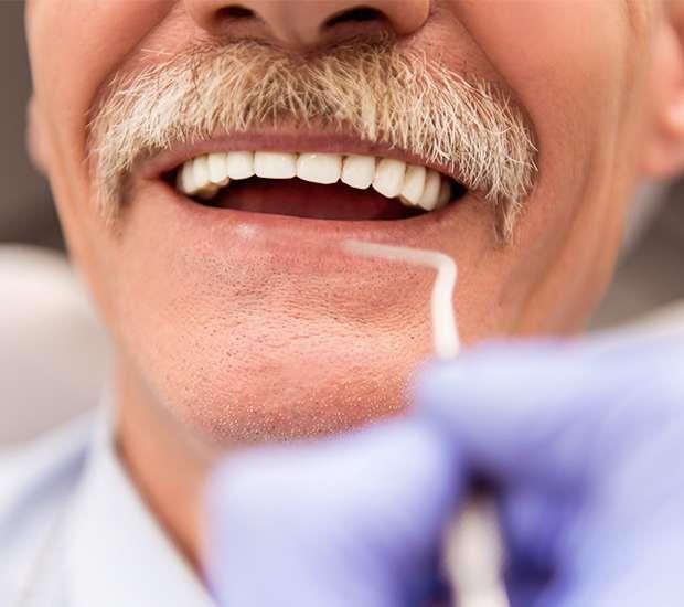 St. Louis Adjusting to New Dentures