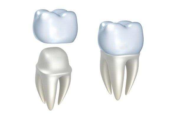 dental implants St. Louis, MO