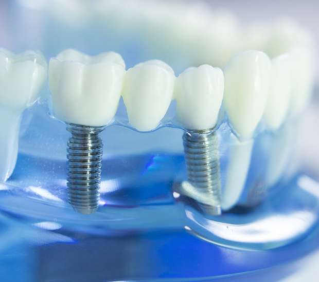 St. Louis Dental Implants