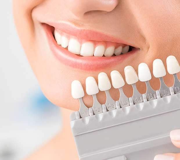St. Louis Dental Veneers and Dental Laminates