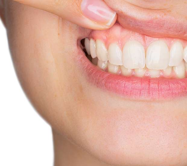 St. Louis Gum Disease